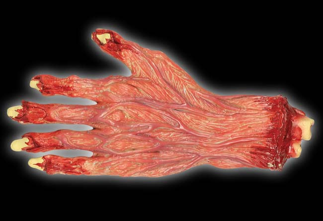 Skinned Severed Hand